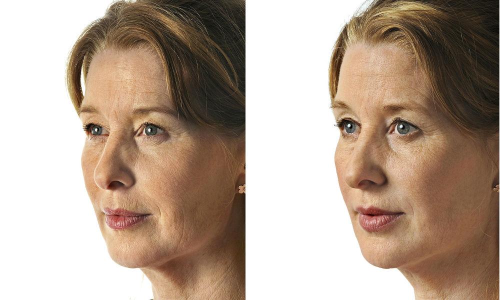 Acido ialuronico prima e dopo - viso
